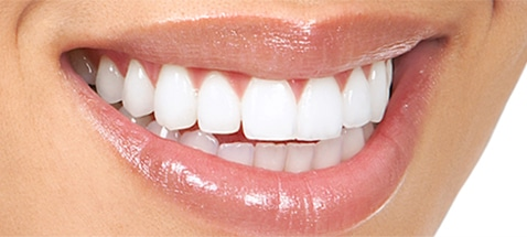 affordable kor teeth whitening union county nj