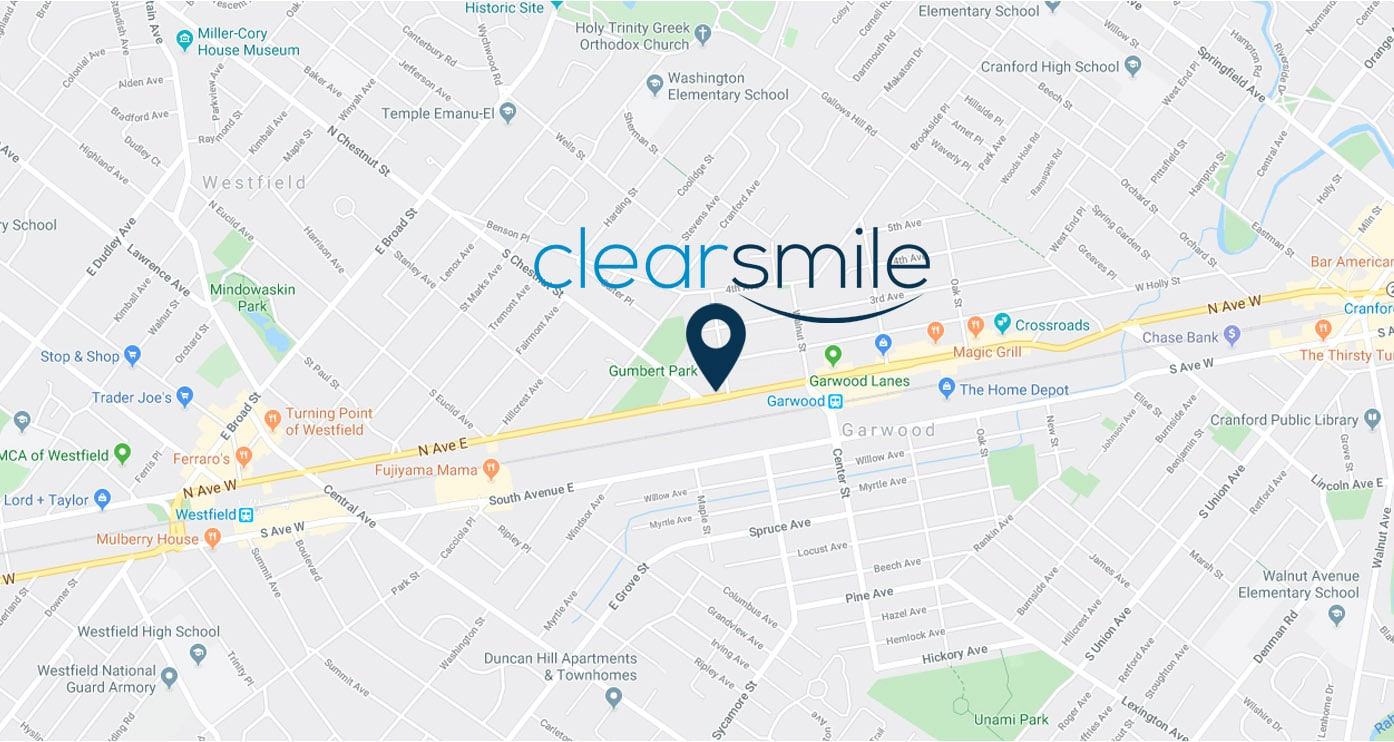 clearsmile invisalign union county nj map
