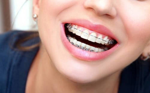 Orthodontics Can Fix These Common Bite Problems