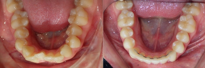 crowding treatment with Invisalign Union County NJ
