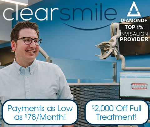 invisalign discount union county nj